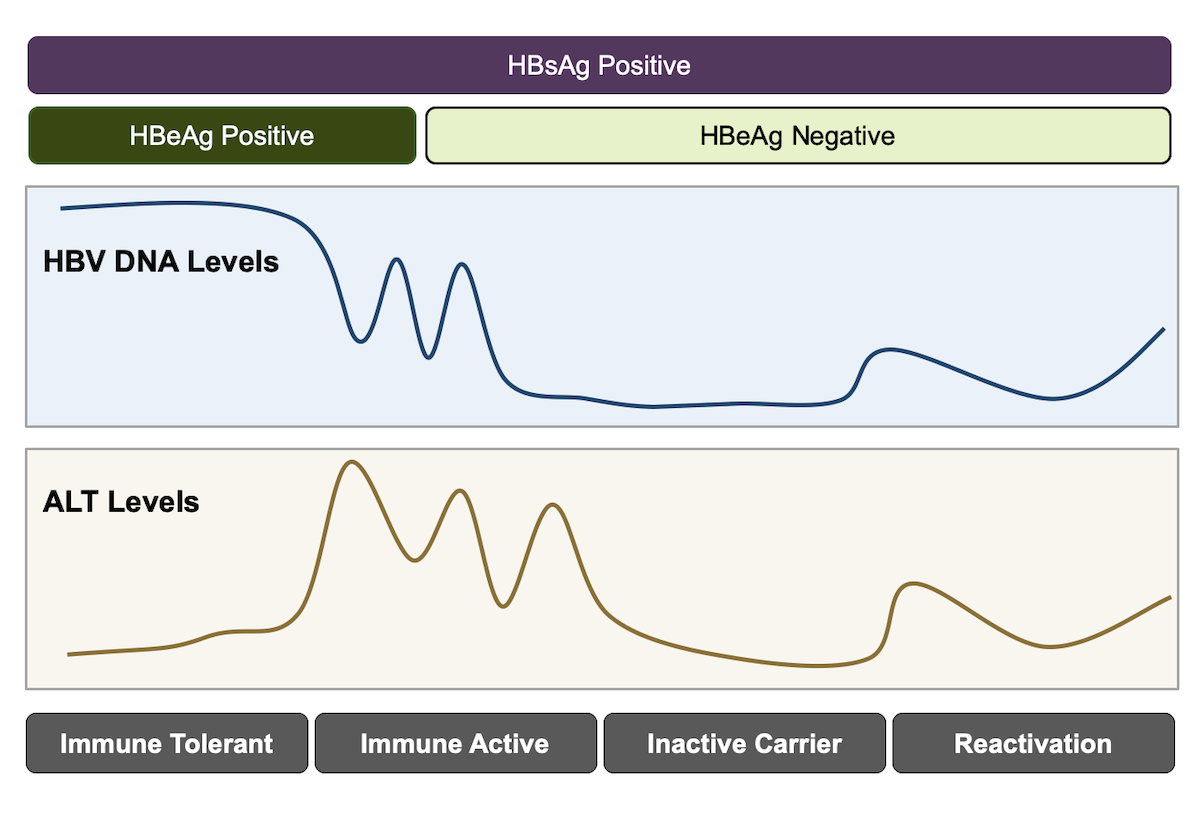 This illustrations shows relationship of different hepatitis B immune phases and fluctuations in HBV DNA and serum alanine aminotransferase (ALT) levels.<div>Illustration: David H. Spach, MD</div>