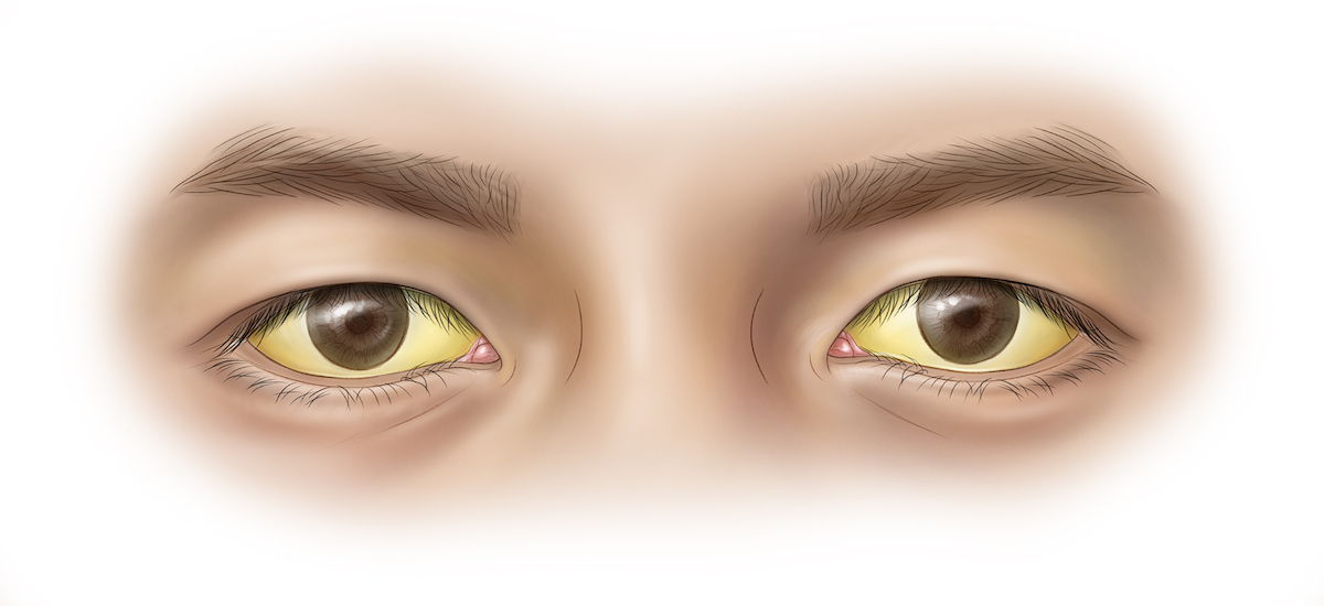 This illustrations shows yellow discoloration of the sclera that results from excess deposition of biliary pigments.<div>Illustration by Jared Travnicek, Cognition Studio</div>